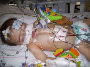 child with Marfan syndrome after heart surgery